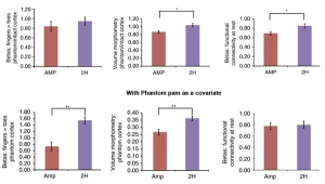 Top: Compared to controls (2H), amputees had a similar level of activity (left), but smaller sized (middle) and less connectivity with the phantom hand area (right). Bottom: After removing the influence of phantom pain, phantom hand area activity and size were less in amputees than controls, but connectivity was normal. Adapted from Makin et al., 2013.