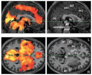 In Hong et al. (2009), fMRI scans indicate widespread activation in the brain during REM sleep.  Left panels indicate areas with statistically significant activity (colored) from sagittal and horizontal sections.  Supplementary right panels provide reference for anatomical regions of interest, e.g. OG=occipital gyrus (for vision); ST=superior temporal gyrus (for hearing, language); GP, Pu, Cd= Globus Pallidus, Putamen, Caudate Nucleus (for voluntary motor control).