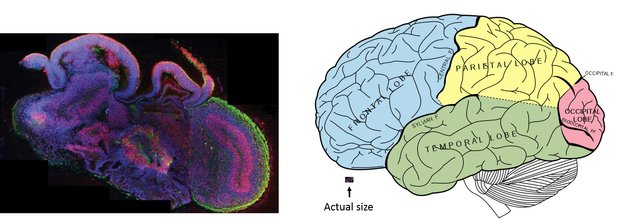 Frog Brain Vs Human Brain Left and a human brain,