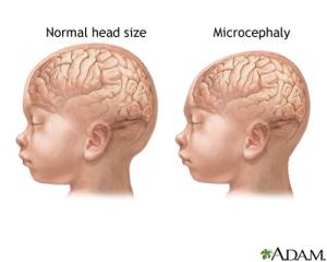 microcephaly