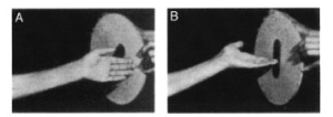 Patient with optic ataxia has difficulty correctly reaching and orienting hand, though perception and movement both occurs. Credit: Battaglia-Mayer & Caminiti (2002), Brain.