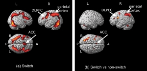 Brain regions involved in cognitive tasks after flavanol intake.