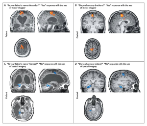 Figure 1. fMRI brain activation maps for a patient (A & C) and control participant (B & D) for a task that asked them to answer yes/no questions by imagining either a motor response (A & B) or spatial response (C & D). Initially, patients and controls underwent a task that asked them to imagine themselves either playing tennis (motor) or navigating the streets of their city (spatial map). During the question portion of the task participants would respond yes or no to questions by using the same type of imagining.