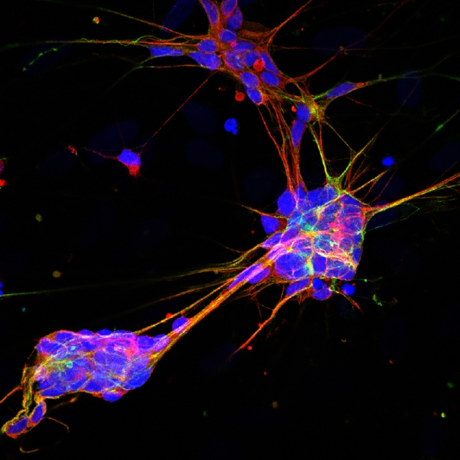 When life gives you skin cells… make sensory neurons!  [Image courtesy of Kevin Eade, Baldwin Lab, TSRI]