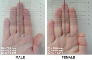 Comparison of typical 2D (2nd finger) to 4D (4th finger) ratios in a male and female. Women with CAH will have 2D:4D ratios, as well as behavioral attributes, that are more stereotypically masculine than women without CAH.
