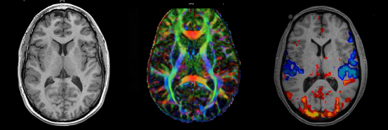 top: anatomical mri (MRI) middle: diffusion tensor imaging (DTI); colors likely indicate the principal direction of connections bottom: functional MRI (fMRI); colors indicate differences in blood flow (warm colors: increase, cool colors: decrease) during different times of the scan.