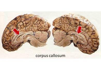 Corpus Callosum Bulgular