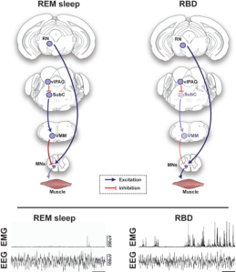 In RBD, the SubC neuron-VMM neuron connection may somehow be degraded. This would result in inappropriate muscle movement during sleep (as depicted by the spikes on the right electromyogram [EMG]), as compared to the stationary and stable sleep of normal individuals (shown by the lack of spikes on the left EMG).