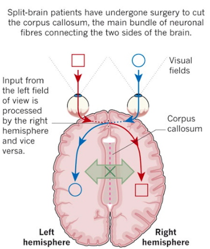 Two brains in one head the story of the split brain phenomenon these experiments tak visual pathways cross ccuart Images