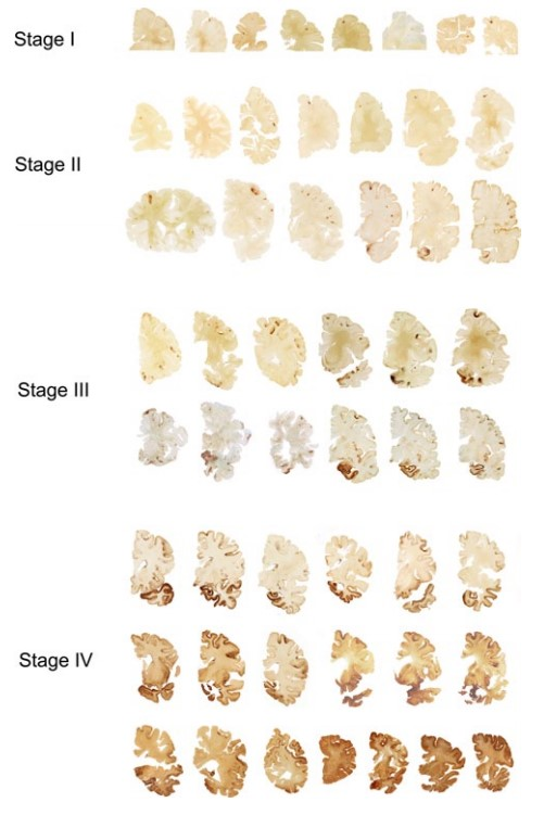 Stages CTE