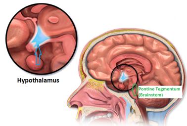 blausen_0536_hypothalamuslocation